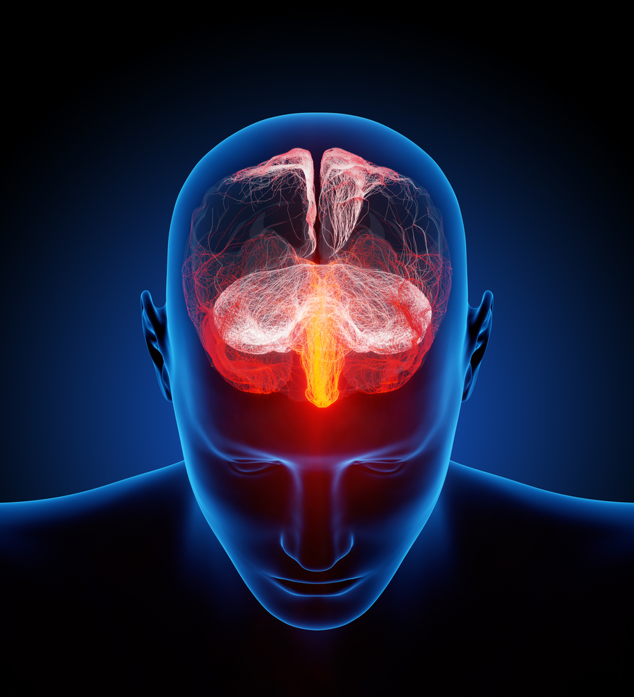 Drug With Anti-Stroke Potential Has Minimal Side Effects