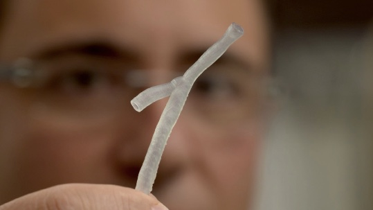 Treating Heart Disease Gets More Precise With 3-D Printing Used by Australian Cardiologists