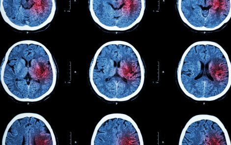 10 Major Risk Factors for Stroke Can Be Modified, Researchers Report
